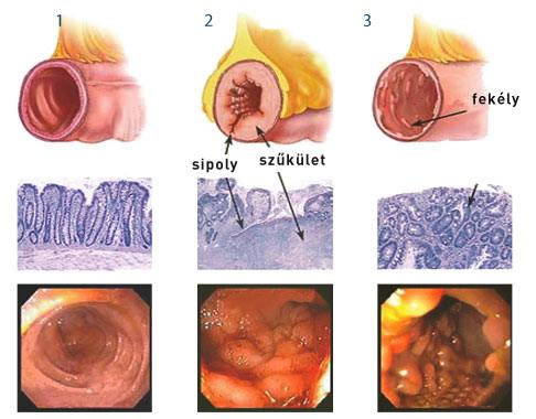 Crohn- betegség és prostatitis