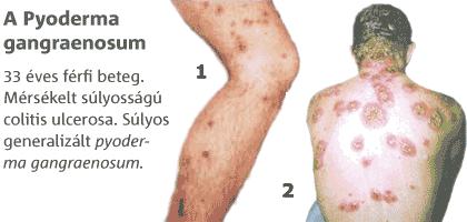 Krónikus gyulladásos bélbetegség: Crohn-betegség